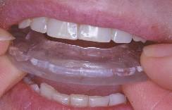 Nettoyer gouttière dentaire